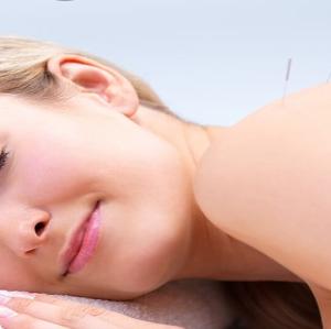 طب سوزنی برای کاهش استرس