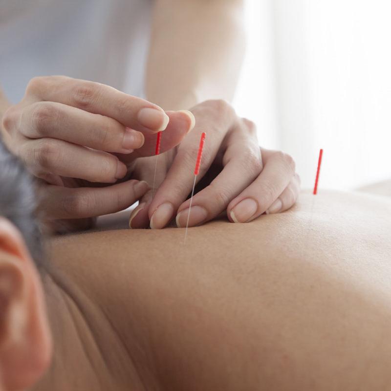 چرا طب سوزنی برای درمان کبد چرب موثر است؟